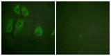 Immunofluorescence analysis of HeLa cells, using IL-2R alpha/CD25 Antibody. The picture on the right is blocked with the synthesized peptide.