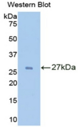 Western blot of recombinant IL2RA / CD25.  This image was taken for the unconjugated form of this product. Other forms have not been tested.