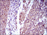 IHC of paraffin-embedded bladder cancer tissues using IL2RA mouse monoclonal antibody with DAB staining.