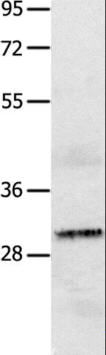 Western blot analysis of A549 cell , using IL2RA Polyclonal Antibody at dilution of 1:750.