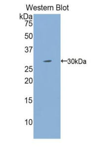 Western blot of recombinant IL2RG / CD132.  This image was taken for the unconjugated form of this product. Other forms have not been tested.