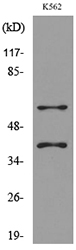 Western blot analysis of lysate from K562 cells, using IL2RG Antibody.