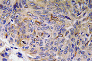 Immunohistochemistry analysis of IL-32 antibody in paraffin-embedded human lung carcinoma tissue.