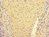 Immunohistochemistry of paraffin-embedded human liver cancer at dilution of 1:100