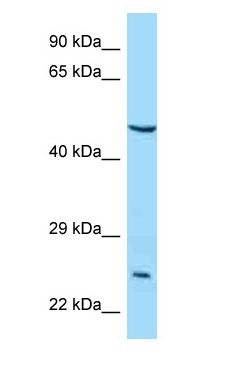 IL5RA / CD125 antibody Western Blot of MCF7.  This image was taken for the unconjugated form of this product. Other forms have not been tested.