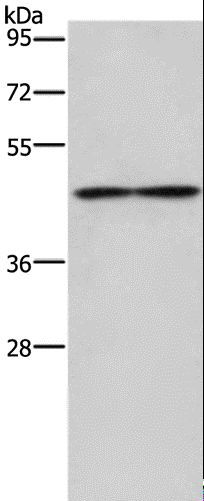 Western blot analysis of Mouse heart tissue, using IL5RA Polyclonal Antibody at dilution of 1:550.