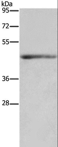 Western blot analysis of Mouse heart tissue, using IL5RA Polyclonal Antibody at dilution of 1:650.