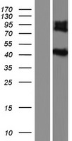 IL5RA / CD125 Protein - Western validation with an anti-DDK antibody * L: Control HEK293 lysate R: Over-expression lysate
