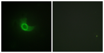 IL6ST / CD130 / gp130 Antibody - Immunofluorescence analysis of NIH/3T3 cells, using CD130/gp130 Antibody. The picture on the right is blocked with the synthesized peptide.