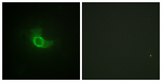 Immunofluorescence analysis of NIH/3T3 cells, using CD130/gp130 Antibody. The picture on the right is blocked with the synthesized peptide.