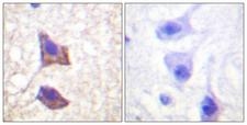 IL6ST / CD130 / gp130 Antibody - Immunohistochemistry analysis of paraffin-embedded human brain tissue, using CD130/gp130 Antibody. The picture on the right is blocked with the synthesized peptide.