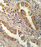 IL8 / Interleukin 8 Antibody - Formalin-fixed and paraffin-embedded human lung carcinoma reacted with IL8 Antibody , which was peroxidase-conjugated to the secondary antibody, followed by DAB staining. This data demonstrates the use of this antibody for immunohistochemistry; clinical relevance has not been evaluated.