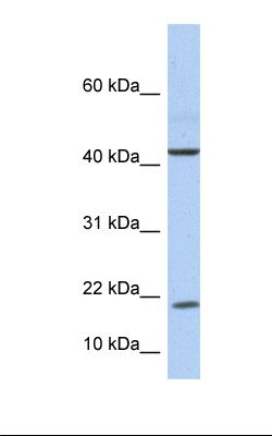 Fetal liver lysate. Antibody concentration: 1.0 ug/ml. Gel concentration: 10-20%.  This image was taken for the unconjugated form of this product. Other forms have not been tested.