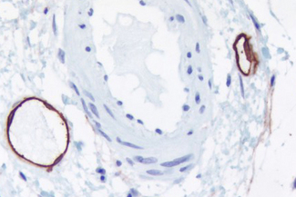 Colon submucosa: Lymphatic endothelium stained using mouse monoclonal antibody against M2A antigen (clone D2-40), ImmPRESS™ anti-mouse Ig reagent (LS-J1061), and Vector® NovaRED® peroxidase substrate (LS-J1084; red). Hematoxylin QS counterstain.