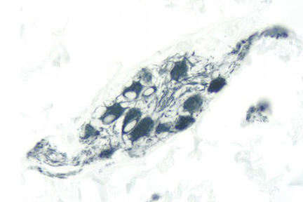 Colon: Peripherin (m), ImmPRESS™ Anti-Mouse Ig Kit, ImmPACT™ SG (blue-gray) substrate.