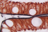 Small Intestine (double label): ImmPRESS™ Anti-Mouse Ig using CD10 primary antibody with DAB/Ni (black) substrate, and ImmPRESS™ Anti-Mouse Ig using Cytokeratin 20 primary antibody with Vector® NovaRED® (red) substrate. No counterstain.