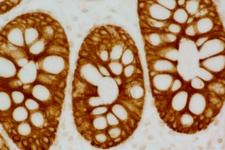 Colon: anti-Cytokeratin AE1/AE3 (mouse MAb), ImmPRESS™ HRP Anti-Mouse IgG (made in goat), DAB Substrate Kit (brown).