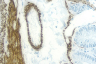 Rat Intestine: Desmin (m), ImmPRESS™ Anti-Mouse Ig Kit (Rat Adsorbed), DAB (brown) Substrate Kit. Hematoxylin QS (blue) counterstain.