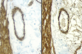 Sections of rat intestine stained with a mouse antibody to Desmin and detected with a rat adsorbed or non-rat adsorbed ImmPRESS™ Anti-Mouse Ig Kit: ImmPRESS™ Anti-Mouse Ig Kit (Rat Adsorbed), left, ImmPRESS™ Anti-Mouse Ig (non-rat adsorbed), right; DAB (brown).