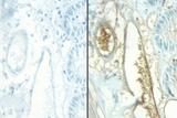 No Primary negative controls of rat intestine stained with a rat adsorbed or non-rat adsorbed ImmPRESS™ Anti-Mouse Ig Kit. ImmPRESS™ Anti-Mouse Ig Kit (Rat Adsorbed), left, ImmPRESS™ Anti-Mouse Ig (non-rat adsorbed), right, DAB (brown) Substrate Kit.