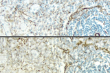 Sections of rat spleen stained with a mouse antibody to Desmin and detected with a rat adsorbed or non-rat adsorbed ImmPRESS™ Anti-Mouse Ig Kit: ImmPRESS™ Anti-Mouse Ig Kit (Rat Adsorbed), top, ImmPRESS™ Anti-Mouse Ig (non-rat adsorbed), bottom; DAB (brown).