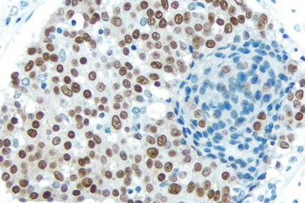 Breast Carcinoma: With Citrate-based Antigen Unmasking Solution, Estrogen receptor (rm), ImmPRESS™ Anti-Rabbit Ig Kit, DAB (brown) substrate. Hematoxylin QS (blue) counterstain.