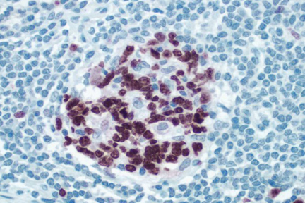 Peyers Patch: ImmPRESS™ anti-rabbit Ig using Ki67 rabbit primary antibody with Vector® NovaRED® (red) substrate. Hematoxylin QS counterstain (blue).