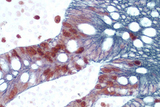 Small Bowel (double label): Ki67 (rp), ImmPRESS™ Universal Reagent, Vector® NovaRED® substrate (red); Cytokeratin 8/18 (m), ImmPRESS™ Universal Reagent, Vector® SG substrate (blue/gray).