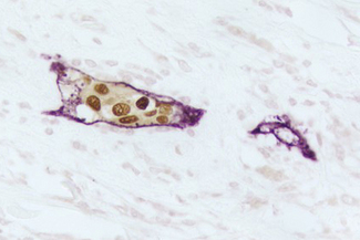 Breast Carcinoma (double label): Estrogen Receptor (rm), ImmPRESS™ Universal Reagent, DAB substrate (brown); M2A Antigen (m), ImmPRESS™ Universal Reagent, Vector® VIP substrate (purple).