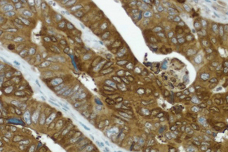 Colon cancer: COX-2 rabbit monoclonal antibody detected with ImmPRESS™ Universal Reagent and DAB substrate (brown). Hematoxylin QS counterstain (blue). Formalin-fixed, paraffin embedded tissue section.