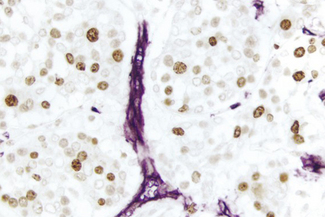 Breast Carcinoma (double label): Ki67 (rm), ImmPRESS™ Universal Reagent, DAB substrate (brown); CD34 (m), ImmPRESS™ Universal Reagent, Vector® VIP substrate (purple).