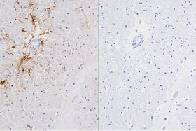 Product - Left: Cat brain stained with mouse antibody against GFAP and detected with ImmPRESS™ VR HRP Anti-Mosue IgG and ImmPACT™ DAB Substrate. Counterstainedwith Vector® Hematoxylin QS. Right: No mouse primary antibody negative control section displaying no background.