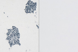 Left. Dog Pancreas stained with rabbit monoclonal antibody against synaptophysin and detected with ImmPRESS™ VR HRP Anti-Rabbit IgG and Vector® SG Substrate. Right: No rabbit primary antibody negative control section displaying no background.