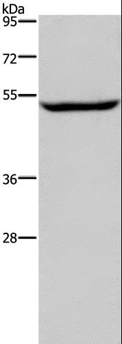 Western blot analysis of Raji cell, using IMPDH1 Polyclonal Antibody at dilution of 1:450.