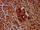 Immunohistochemistry Dilution at 1:600 and staining in paraffin-embedded human pancreatic tissue performed on a Leica BondTM system. After dewaxing and hydration, antigen retrieval was mediated by high pressure in a citrate buffer (pH 6.0). Section was blocked with 10% normal Goat serum 30min at RT. Then primary antibody (1% BSA) was incubated at 4°C overnight. The primary is detected by a biotinylated Secondary antibody and visualized using an HRP conjugated SP system.