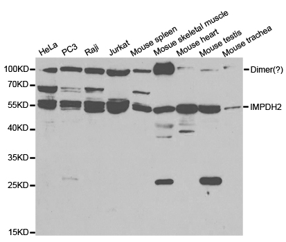 IMPDH2 Antibody - Western blot analysis of extracts of various cell lines.