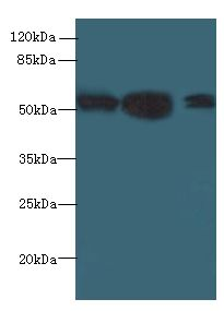 IMPDH2 Antibody - Western blot. All lanes: IMPDH2 antibody at 12 ug/ml. Lane 1: Mouse heart tissue. Lane 2: A549 whole cell lysate. Lane 3: HeLa whole cell lysate. Secondary antibody: Goat polyclonal to Rabbit IgG at 1:10000 dilution. Predicted band size: 56 kDa. Observed band size: 56 kDa.