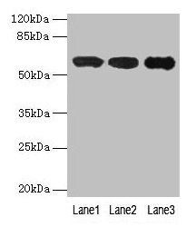IMPDH2 Antibody - Western blot All lanes: IMPDH2 antibody at 12µg/ml Lane 1: Mouse heart tissue Lane 2: A549 whole cell lysate Lane 3: Hela whole cell lysate Secondary Goat polyclonal to rabbit IgG at 1/10000 dilution Predicted band size: 56 kDa Observed band size: 56 kDa