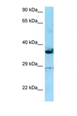 INF2 antibody Western blot of HepG2 Cell lysate. Antibody concentration 1 ug/ml.  This image was taken for the unconjugated form of this product. Other forms have not been tested.