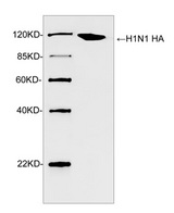 Influenza A Virus H1 Antibody - Western blot analysis of H1N1 HA recombinant protein using Rabbit Anti-H1N1 HA Polyclonal Antibody The signal was developed with IRDye TM 800 Conjugated Goat Anti-Rabbit IgG.Predicted Size: 115 KDObserved Size: 115 KD