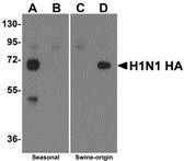 Western blot of Hemagglutinin using recombinant seasonal Hemagglutinin (lanes A & B) and swine-origin Hemagglutinin (lanes C & D) with anti-seasonal Hemagglutinin antibody (LS-C108541) at 2 ug/ml (lanes A & C) and anti-swine-origin Hemagglutinin antibody (LS-C108542) at 2 ug/ml (lanes B & D). Below: Swine-origin Hemagglutinin antibody at 2 ug/ml specifically recognizes swine-origin influenza virus (S-OIV) A H1N1 but not seasonal influenza virus A H1N1 Hemagglutinin protein. ELISA results using Swine H1N1 Hemagglutinin antibody at 1 ug/ml and the blocking and corresponding peptides at 50, 10, 2 and 0 ng/ml.