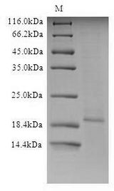 Influenza A H5N1 M2 Protein - (Tris-Glycine gel) Discontinuous SDS-PAGE (reduced) with 5% enrichment gel and 15% separation gel.