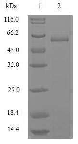 Nucleocapsid Protein Protein - (Tris-Glycine gel) Discontinuous SDS-PAGE (reduced) with 5% enrichment gel and 15% separation gel.