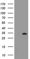 HEK293T cells were transfected with the pCMV6-ENTRY control (Left lane) or pCMV6-ENTRY ING2 (Right lane) cDNA for 48 hrs and lysed. Equivalent amounts of cell lysates (5 ug per lane) were separated by SDS-PAGE and immunoblotted with anti-ING2.