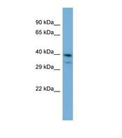INPP5J / PIB5PA Antibody - Western blot of Human Jurkat. INPP5J antibody dilution 1.0 ug/ml.  This image was taken for the unconjugated form of this product. Other forms have not been tested.