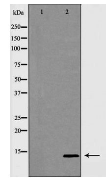 Western blot of INSL3 expression in MCF7 cells