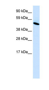 INSM1 Antibody - INSM1 antibody Western Blot analysis of Fetal lung lysate. This image was taken for the unconjugated form of this product. Other forms have not been tested.