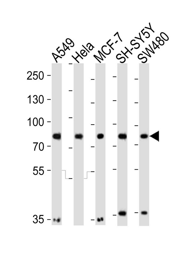 Western blot of lysates from A549, HeLa, MCF-7, SH-SY5Y, SW480 cell line (from left to right) with INSRR Antibody. Antibody was diluted at 1:1000 at each lane. A goat anti-rabbit IgG H&L (HRP) at 1:10000 dilution was used as the secondary antibody. Lysates at 20 ug per lane.