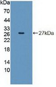 Western Blot; Sample: Recombinant INSRR, Human.