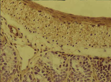 IHC: Rat anti-Mouse Integrin alpha5beta1 (INTEGRIN A5/B1, RT X MS-100UL) staining of mouse gut.